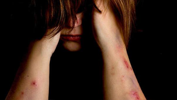 Las redes sociales presentan problemas para lidiar con temas referidos a suicidio y auto lesiones