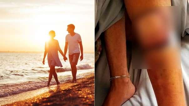 Tras un paseo por la playa, la mujer contrajo una bacteria que acabó costándole la vida