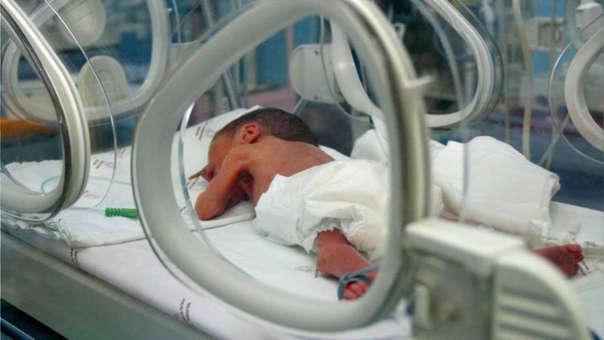 El presupuesto para atender la salud materno neonatal sirve entre otros para adquirir incubadoras para bebés, incubadoras de transporte, equipos ecógrafos - ultrasonido, oxímetro de pulso, respiradores artificiales o mecánicos, etc.