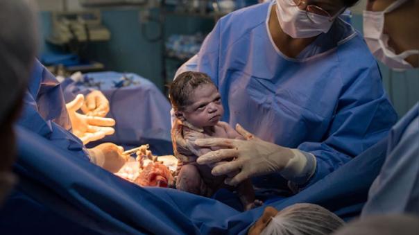 Isa, la bebé que nació con una singular expresión.