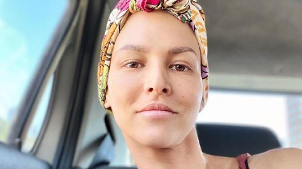 Anahí de Cárdenas sigue su lucha contra el cáncer.