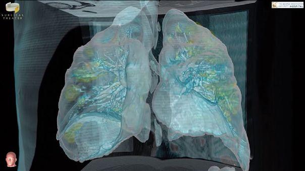 Según el Dr. Keith Mortman existe una posibilidad de daño permanente a los pulmones de quienes sobreviven al Covid-19.