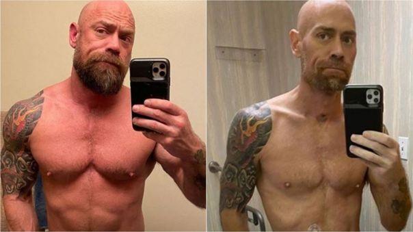 Izquierda: Schultz un mes antes de ser internado. Derecha: en la sexta semana del tratamiento.