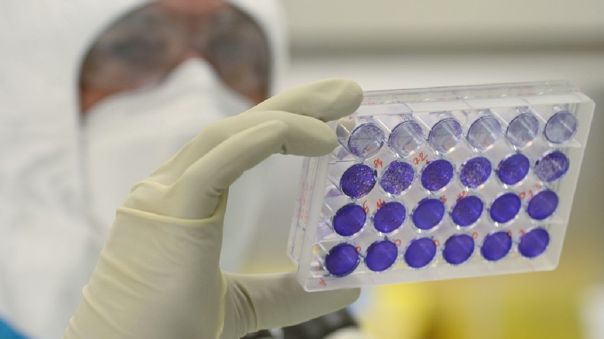 Rusia, como muchos otros países, trabaja desde hace meses en varios proyectos de vacunas del COVID-19.