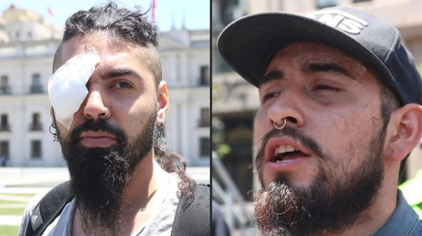 Gustavo Gatica, de 21 años, recibió disparos de balines de goma en sus dos ojos durante la jornada de protestas.