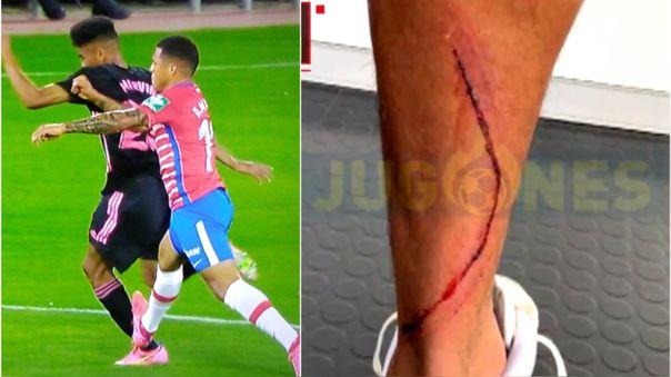 Así quedó la pierna de Marvin Park tras el Real Madrid vs. Granada