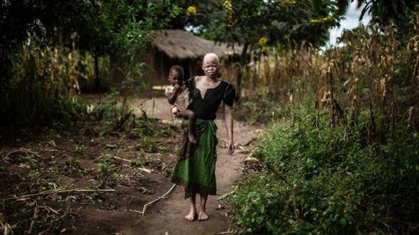 Situación de albinos