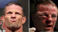 UFC: el antes y después de los peleadores mal heridos en combate