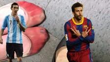 Ronaldo Nazario y los futbolistas con los pies más espantosos del mundo