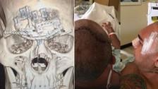 MMA: Evangelista Santos mostró su cráneo reconstruido tras brutal rodillazo