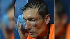 Árbitro sufrió salvaje paliza por un penal no señalado en Argentina