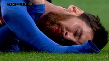 Así quedó la boca de Messi tras fuerte codazo de Marcelo