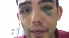 Hincha del Atlético de Madrid fue agredido en las afueras del Bernabéu