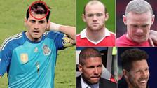 8 deportistas (casi calvos) que se hicieron injerto de pelo