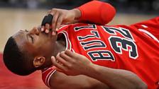 Jugador de la NBA se rompió la boca tras brutal golpe con el suelo