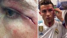Así quedó la cara Cristiano Ronaldo tras sufrir un golpe