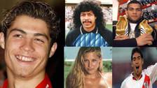 Cristiano Ronaldo: deportistas que han pasado por el quirófano por estética
