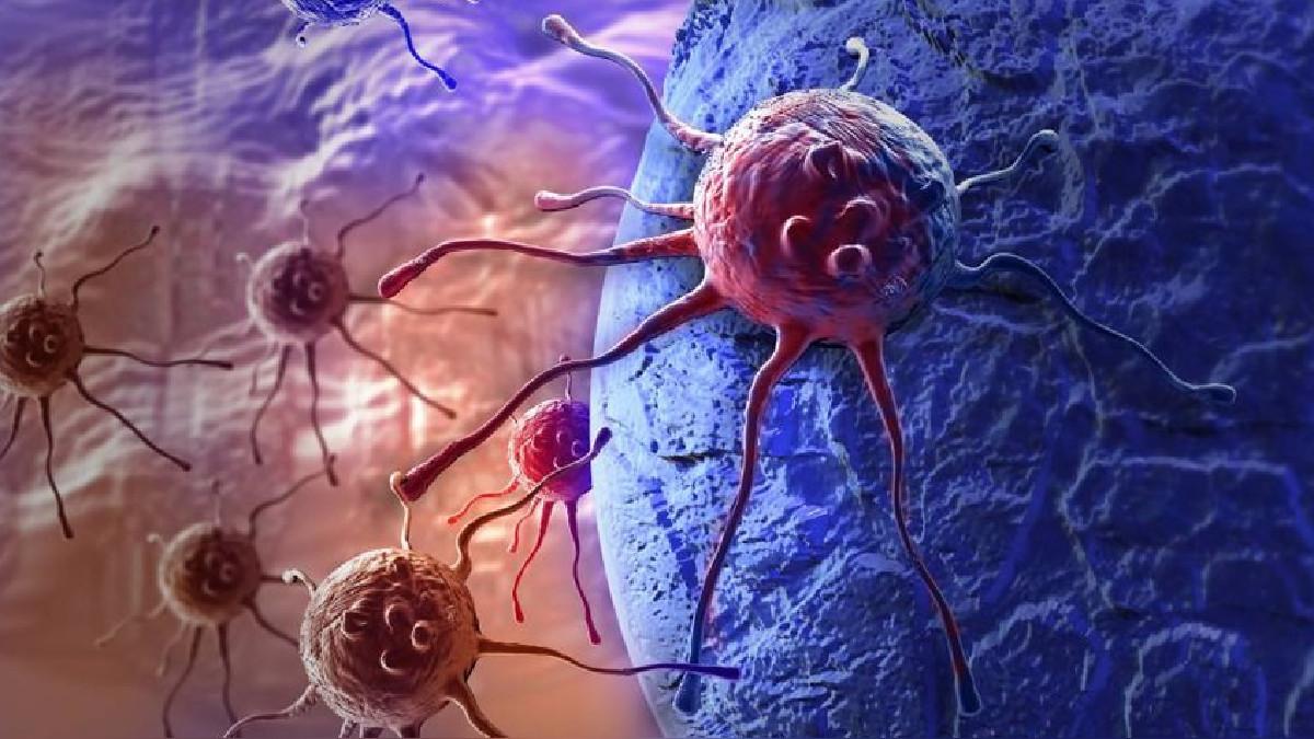 Descubierto un posible método de frenar la metástasis del cáncer