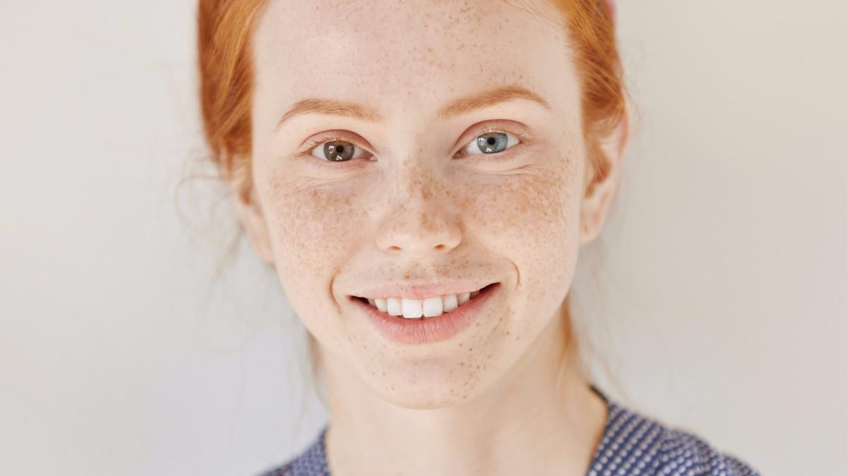 rasgos extremadamente raros ojos de color diferente